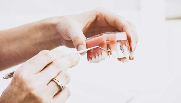 歯科治療でアレルギーが起こったことがある事例を連想させる画像